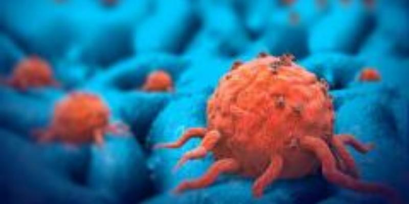 France: nouveau plan contre les cancers